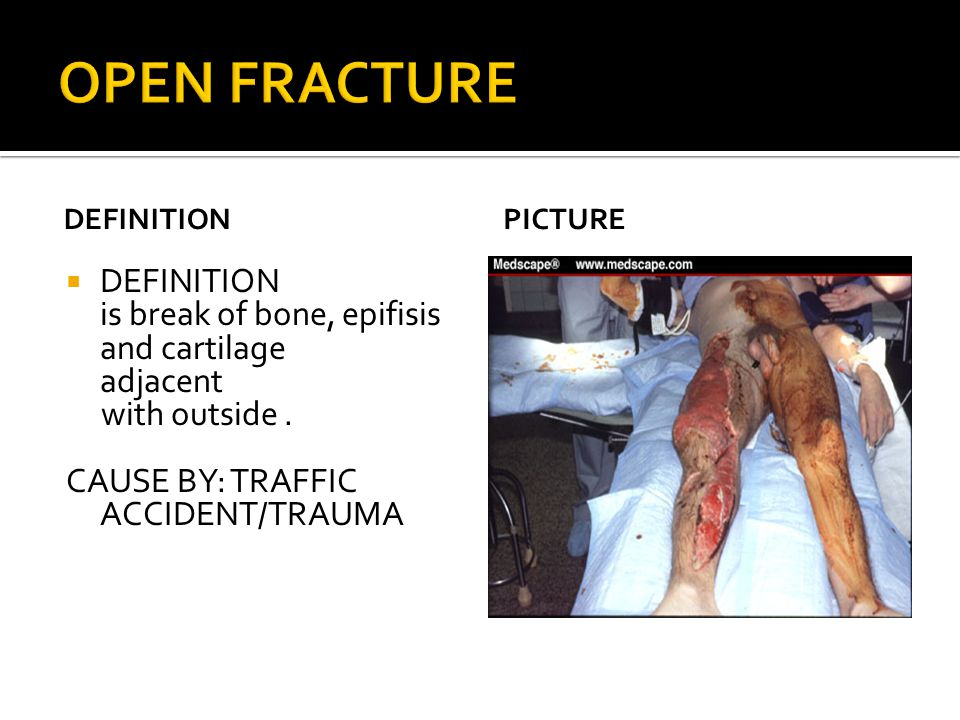 DEFINITION  DEFINITION is break of bone, epifisis and cartilage adjacent with outside. CAUSE BY: TRAFFIC ACCIDENT/TRAUMA PICTURE