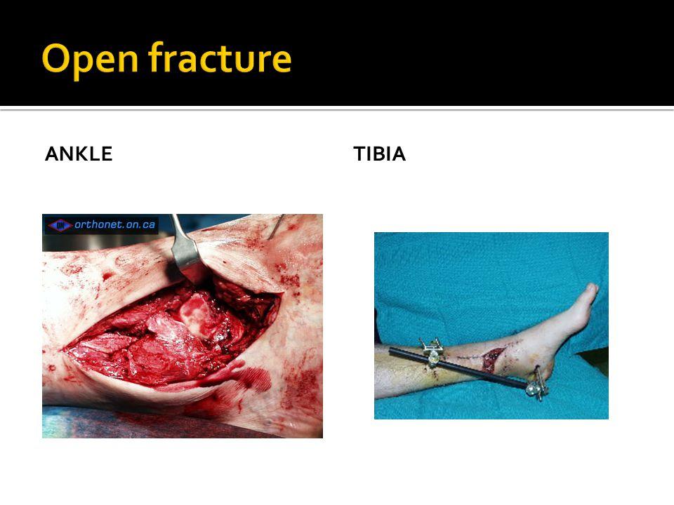  Prevent Anti Tetanus ATS/Toxoid Rural area accident give Penicilin procain