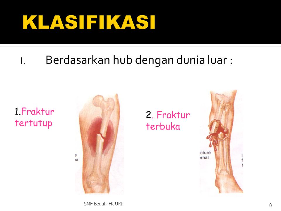  COMPLETE/ UNCOMPLETE  FRACTURE LINE FORM  FRACTURE LINE  DISPLACED /UNDISPLACED  CLOSED OR OPEN FRACTURE