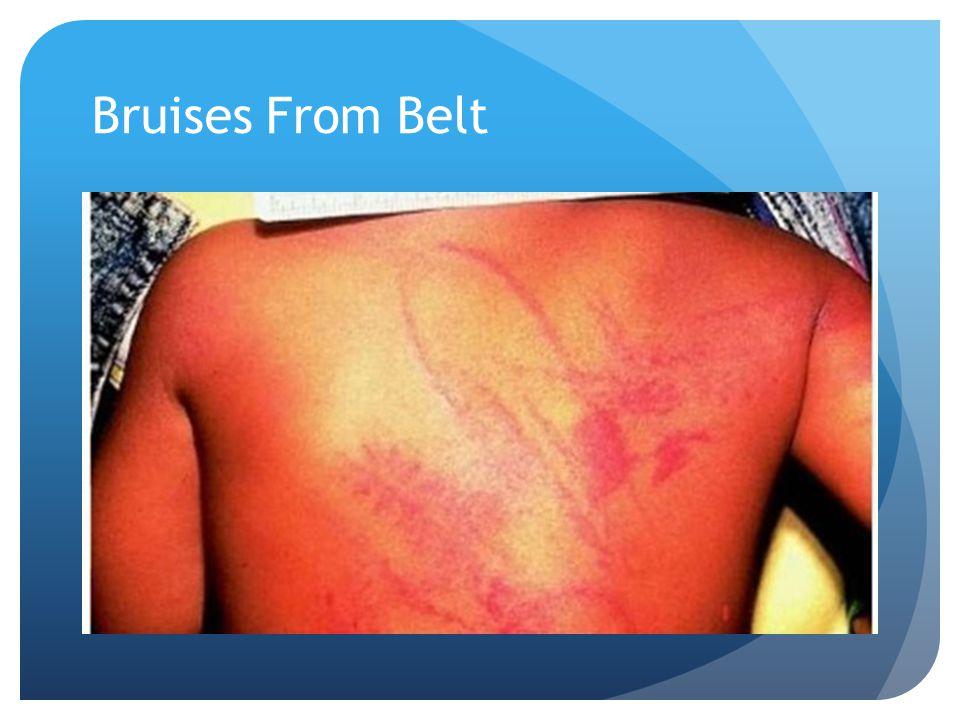Bruises From Belt