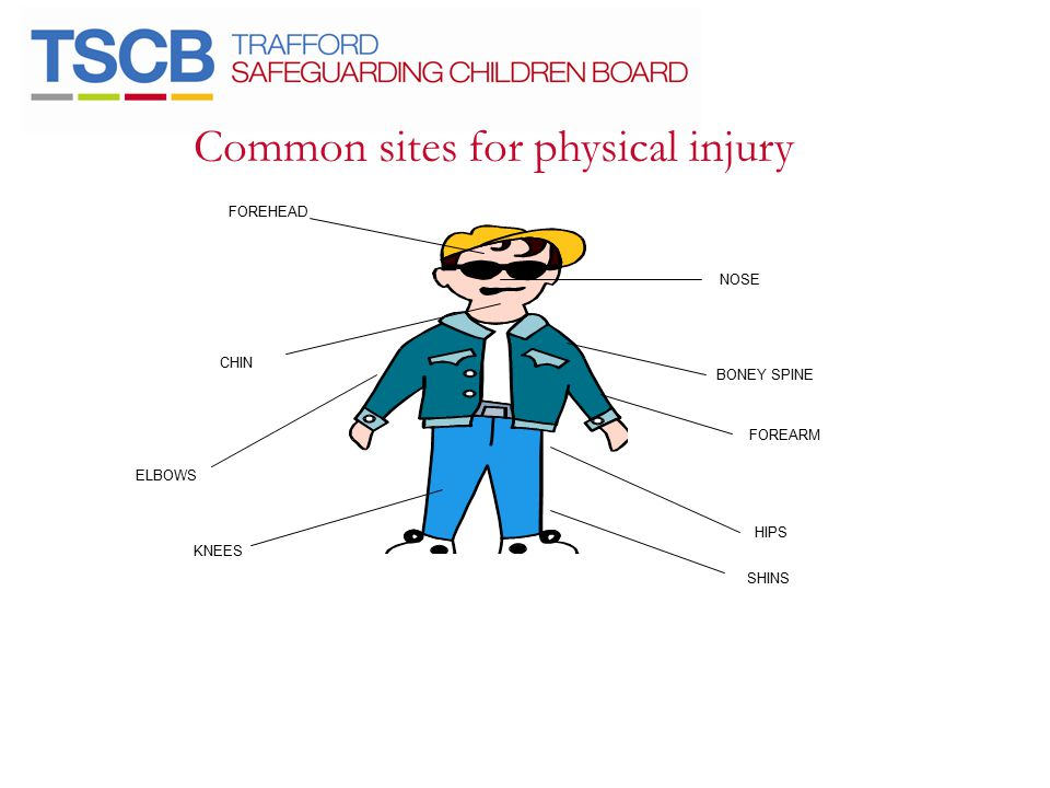 Common sites for physical injury NOSE BONEY SPINE FOREARM HIPS SHINS KNEES ELBOWS CHIN FOREHEAD