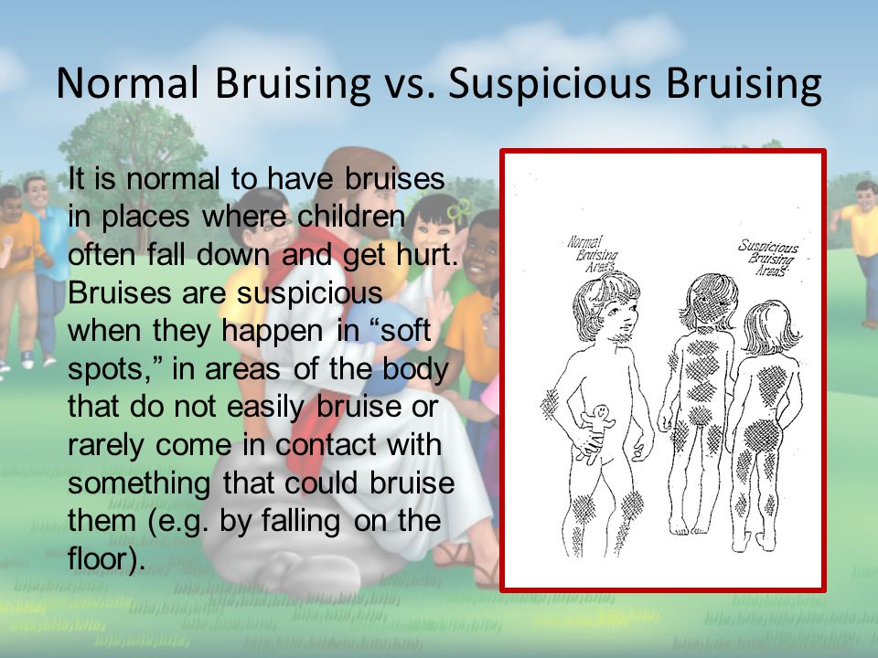 Is Discipline Abusive.