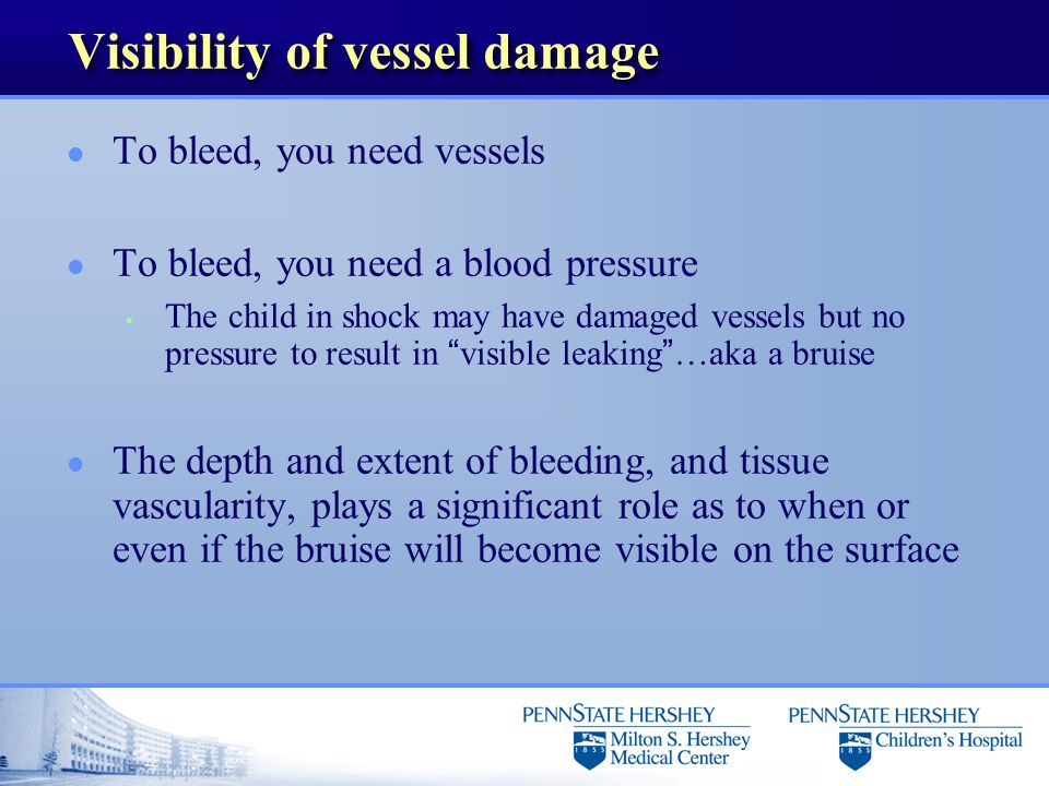 Visibility of vessel damage l To bleed, you need vessels l To bleed, you need a blood pressure The child in shock may have damaged vessels but no pres