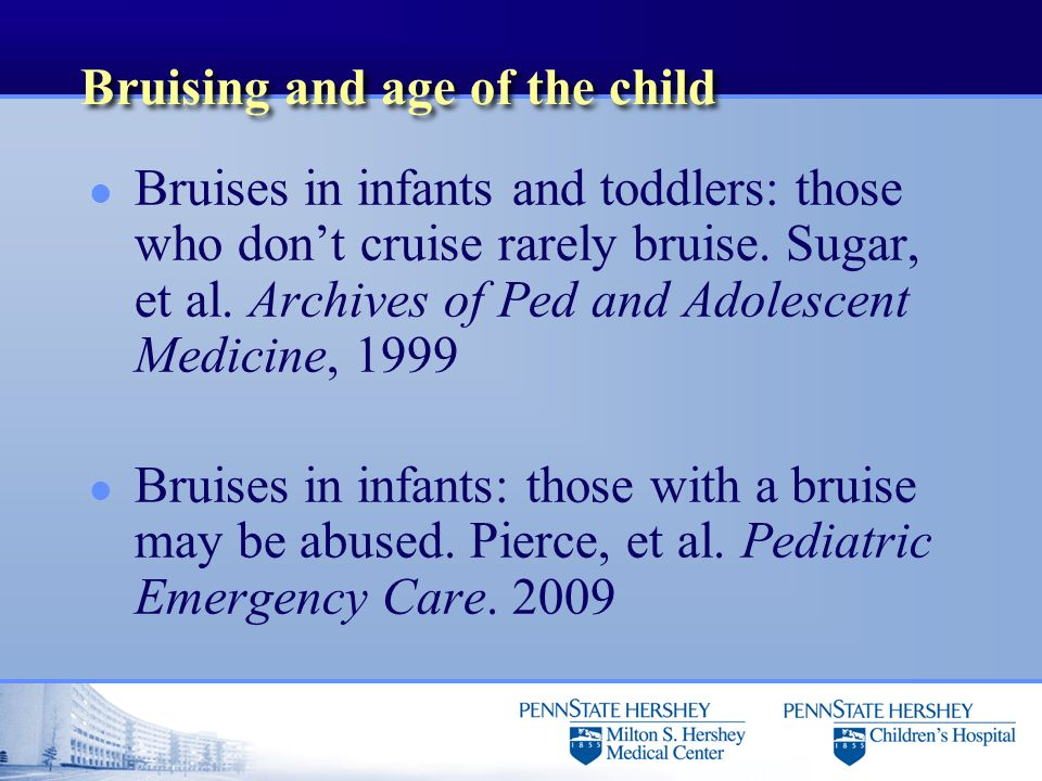 Bruising and age of the child l Bruises in infants and toddlers: those who don't cruise rarely bruise. Sugar, et al. Archives of Ped and Adolescent Me