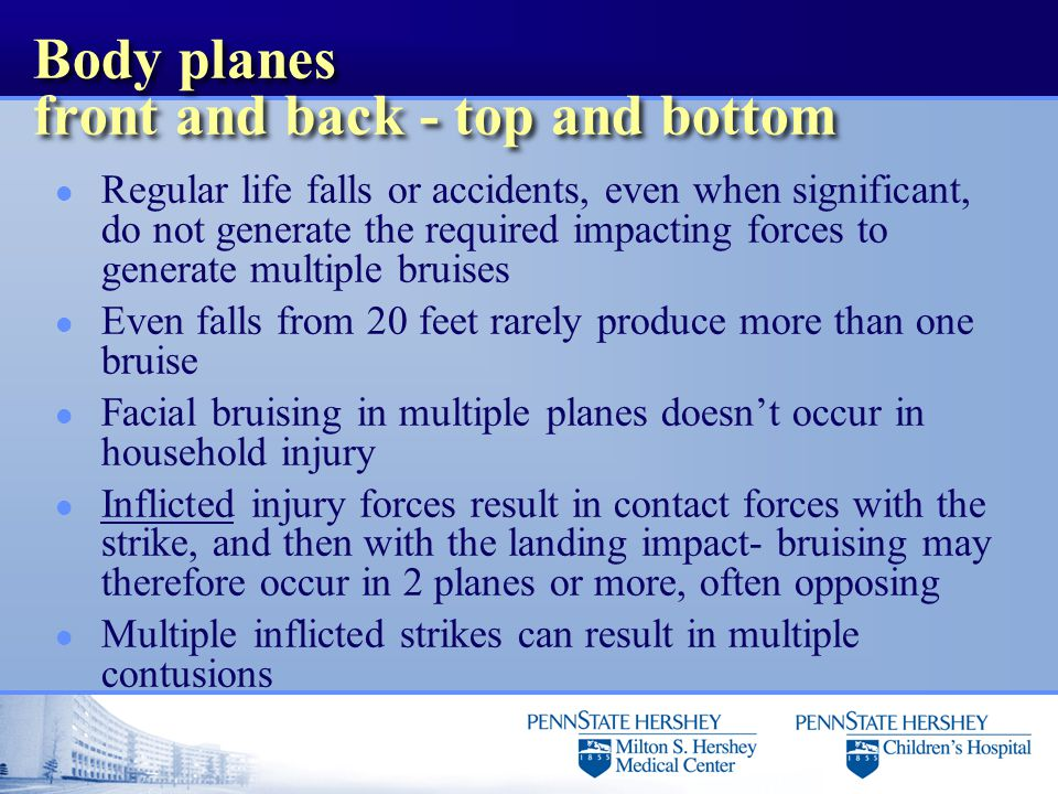 Body planes front and back - top and bottom l Regular life falls or accidents, even when significant, do not generate the required impacting forces to generate multiple bruises l Even falls from 20 feet rarely produce more than one bruise l Facial bruising in multiple planes doesn't occur in household injury l Inflicted injury forces result in contact forces with the strike, and then with the landing impact- bruising may therefore occur in 2 planes or more, often opposing l Multiple inflicted strikes can result in multiple contusions