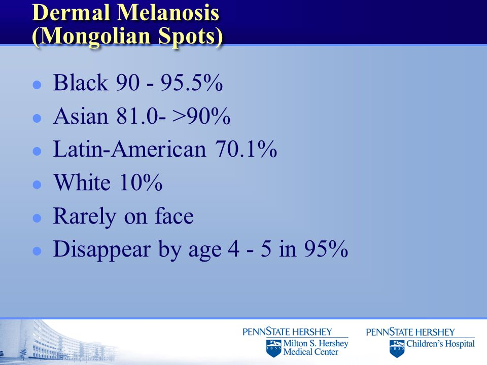 Dermal Melanosis (Mongolian Spots) l Black 90 - 95.5% l Asian 81.0- >90% l Latin-American 70.1% l White 10% l Rarely on face l Disappear by age 4 - 5 in 95%