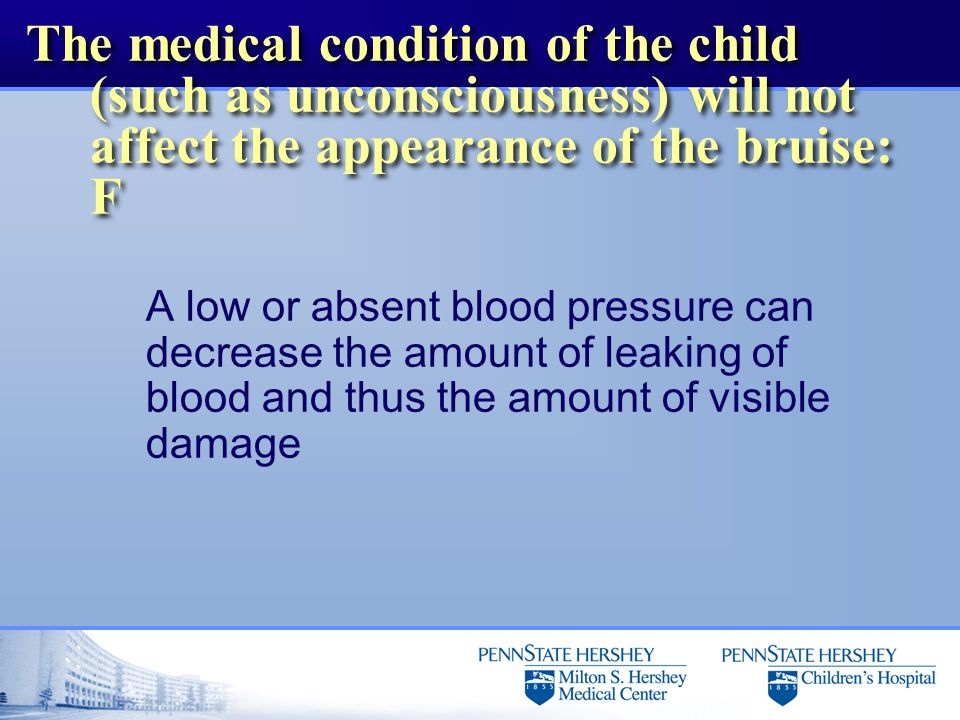 The medical condition of the child (such as unconsciousness) will not affect the appearance of the bruise: F A low or absent blood pressure can decrease the amount of leaking of blood and thus the amount of visible damage