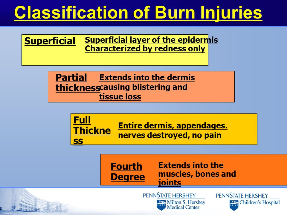 Classification of Burn Injuries Superficial Partial thickness Full Thickne ss Fourth Degree Superficial layer of the epidermis Characterized by rednes