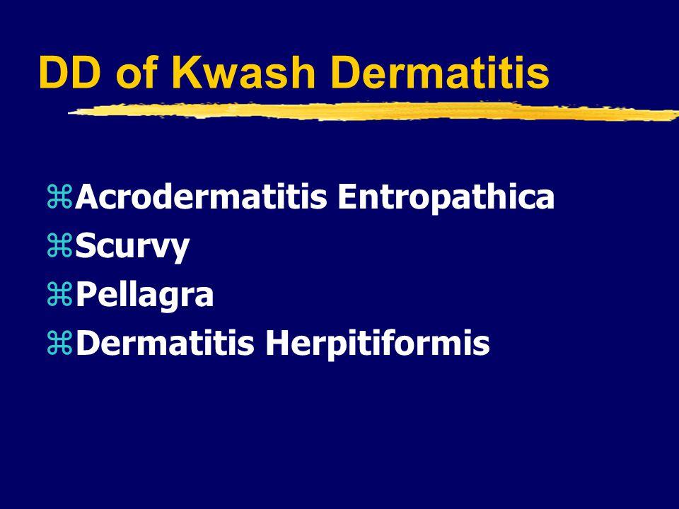 DD of Kwash Dermatitis zAcrodermatitis Entropathica zScurvy zPellagra zDermatitis Herpitiformis