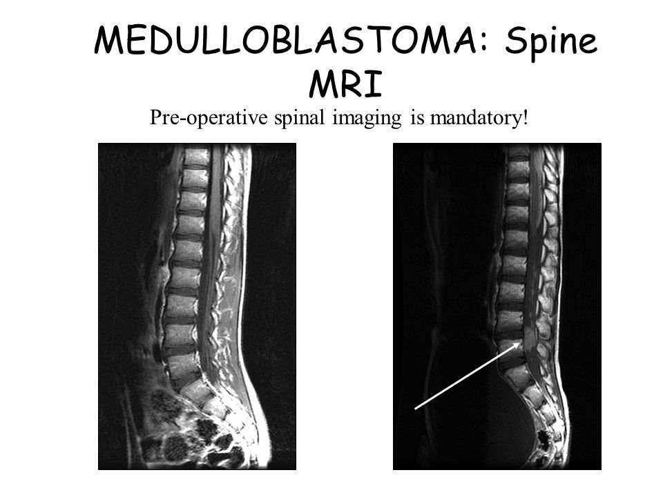 MEDULLOBLASTOMA: Spine MRI Pre-operative spinal imaging is mandatory!