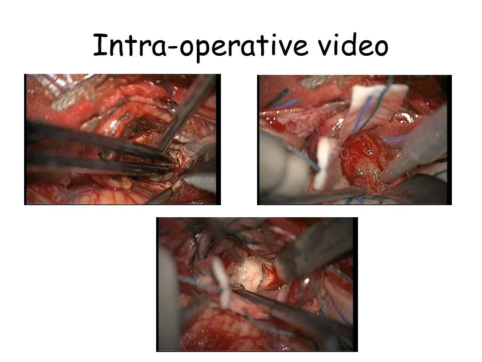 Intra-operative video