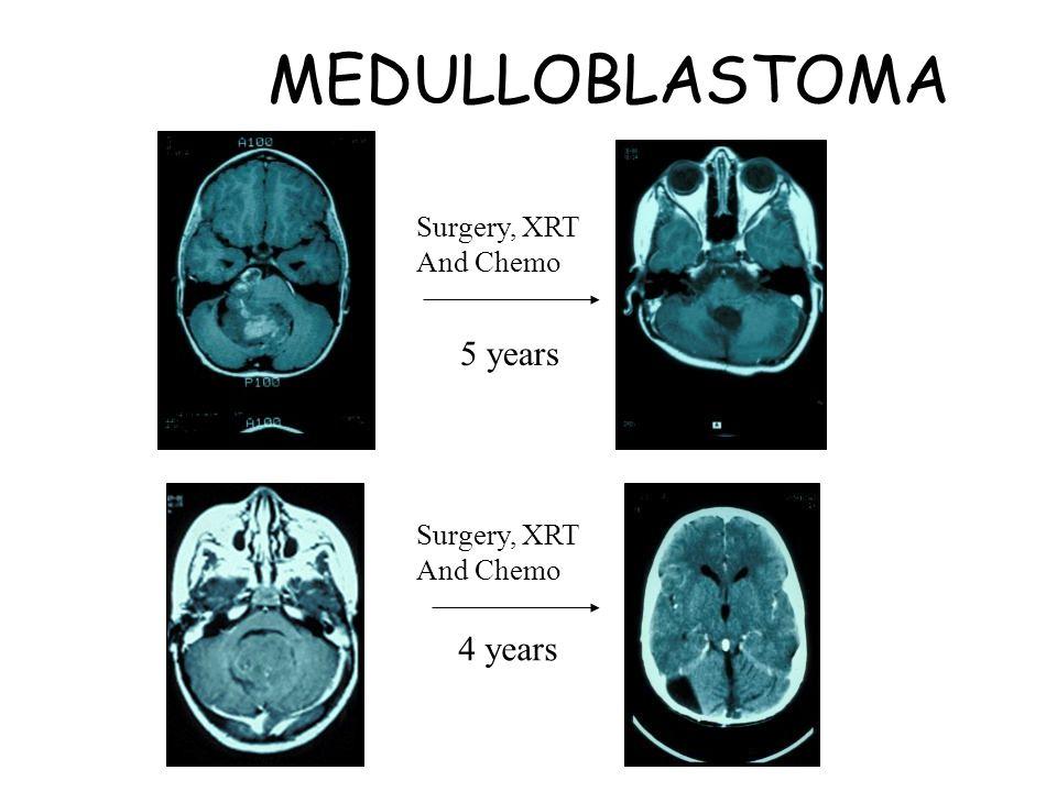 MEDULLOBLASTOMA Surgery, XRT And Chemo 5 years Surgery, XRT And Chemo 4 years