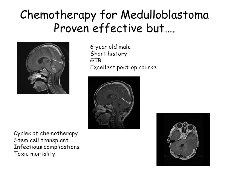 Chemotherapy for Medulloblastoma Proven effective but…. Cycles of chemotherapy Stem cell transplant Infectious complications Toxic mortality 6 year ol