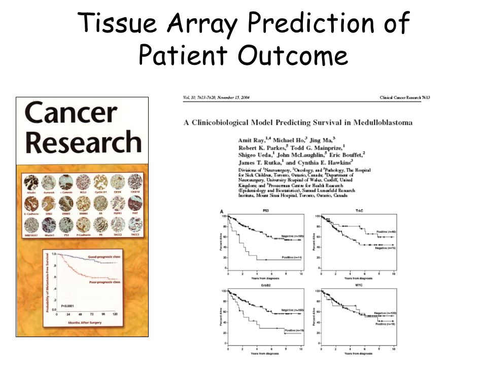 Tissue Array Prediction of Patient Outcome