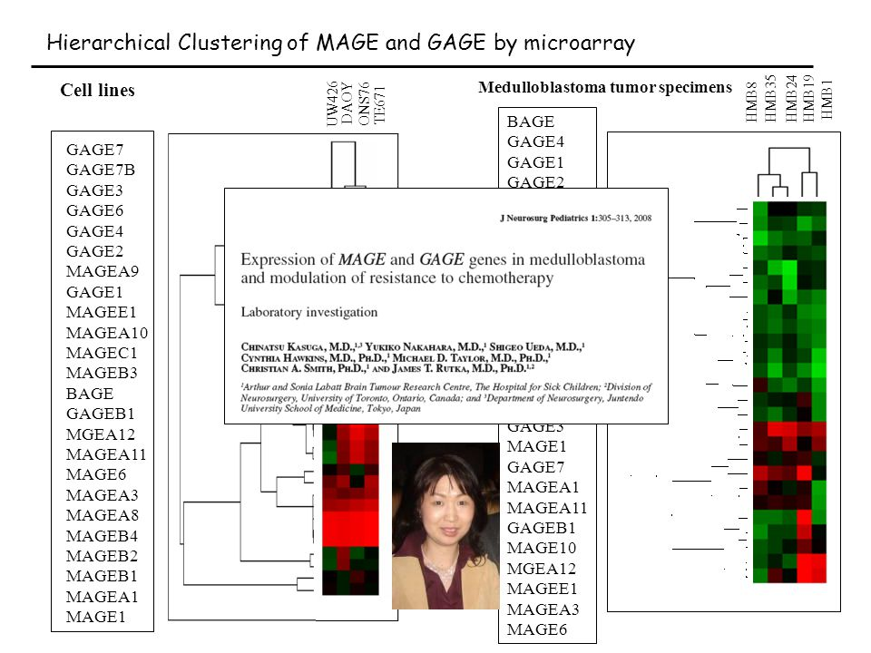 Hierarchical Clustering of MAGE and GAGE by microarray UW426 DAOY ONS76 TE671 GAGE7 GAGE7B GAGE3 GAGE6 GAGE4 GAGE2 MAGEA9 GAGE1 MAGEE1 MAGEA10 MAGEC1 MAGEB3 BAGE GAGEB1 MGEA12 MAGEA11 MAGE6 MAGEA3 MAGEA8 MAGEB4 MAGEB2 MAGEB1 MAGEA1 MAGE1 Cell lines BAGE GAGE4 GAGE1 GAGE2 MAGEB4 MAGEB3 GAGE7B GAGE6 MAGEB2 GAGE2 MAGEA8 MAGEA9 GAGE1 MAGEC1 MAGEB1 GAGE3 MAGE1 GAGE7 MAGEA1 MAGEA11 GAGEB1 MAGE10 MGEA12 MAGEE1 MAGEA3 MAGE6 Medulloblastoma tumor specimens HMB1 HMB19HMB24HMB35 HMB8