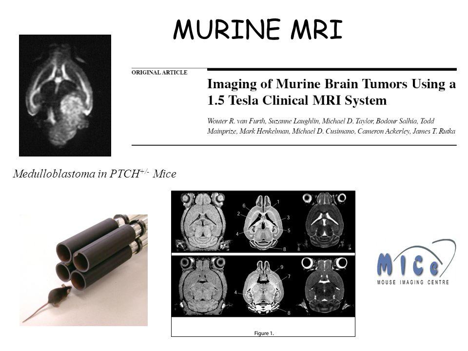 MURINE MRI Medulloblastoma in PTCH +/- Mice