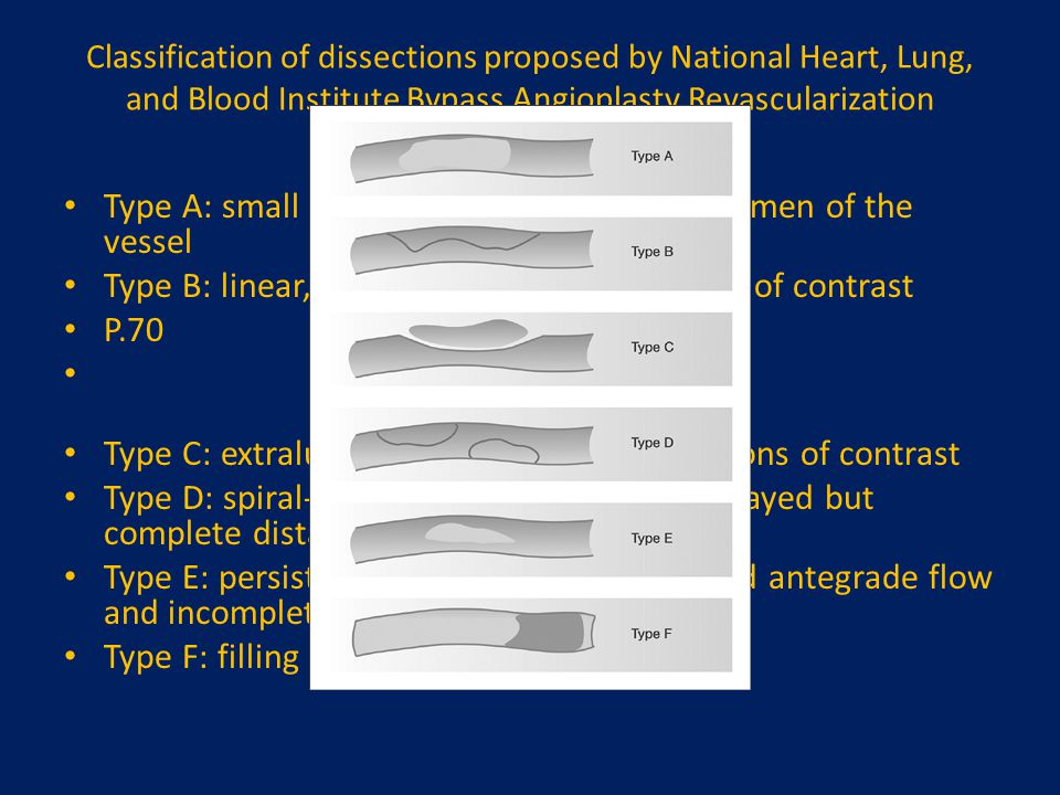 Classification of dissections proposed by National Heart, Lung, and Blood Institute Bypass Angioplasty Revascularization Investigation (BARI). Type A: