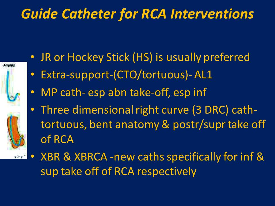 Guide Catheter for RCA Interventions JR or Hockey Stick (HS) is usually preferred Extra-support-(CTO/tortuous)- AL1 MP cath- esp abn take-off, esp inf