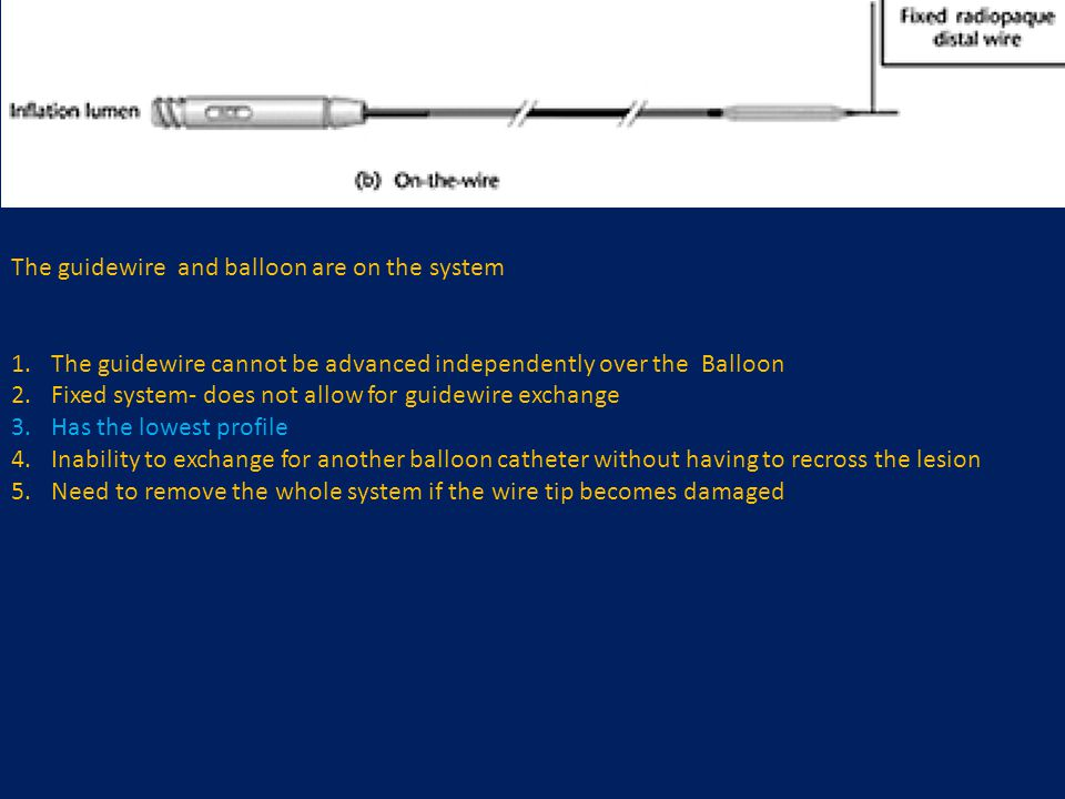 The guidewire and balloon are on the system 1.The guidewire cannot be advanced independently over the Balloon 2.Fixed system- does not allow for guide