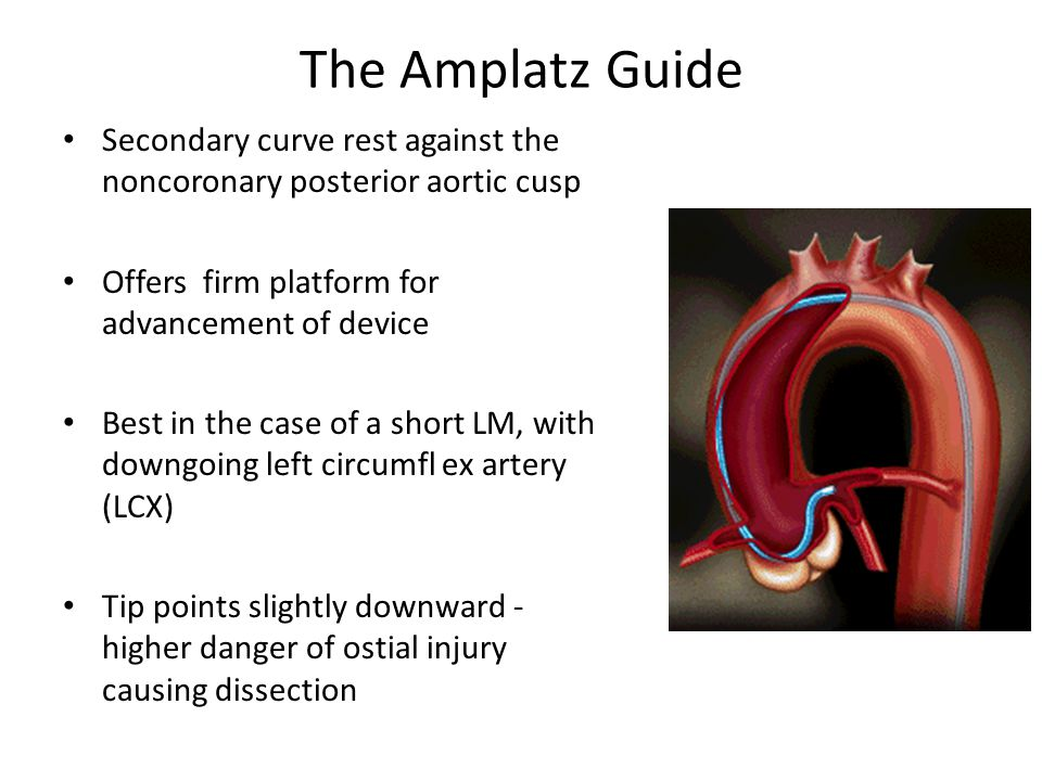 The Amplatz Guide Secondary curve rest against the noncoronary posterior aortic cusp Offers firm platform for advancement of device Best in the case o