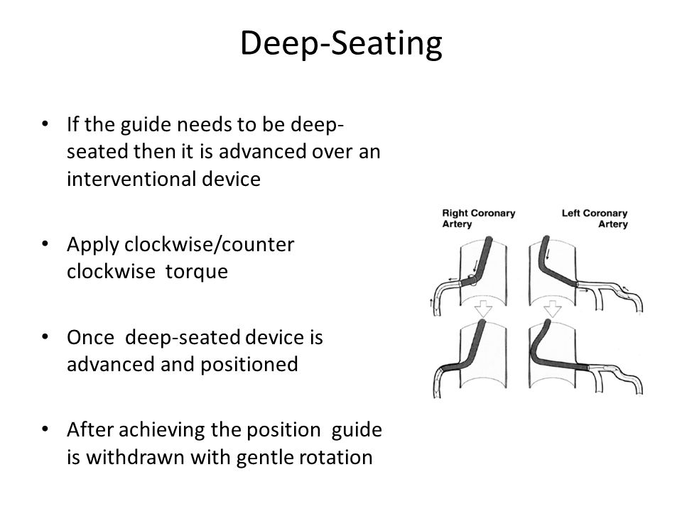 Deep-Seating If the guide needs to be deep- seated then it is advanced over an interventional device Apply clockwise/counter clockwise torque Once dee