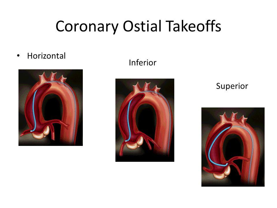 Coronary Ostial Takeoffs Horizontal Inferior Superior
