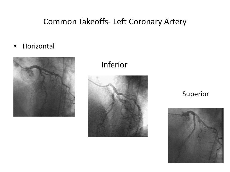 Common Takeoffs- Left Coronary Artery Horizontal Inferior Superior