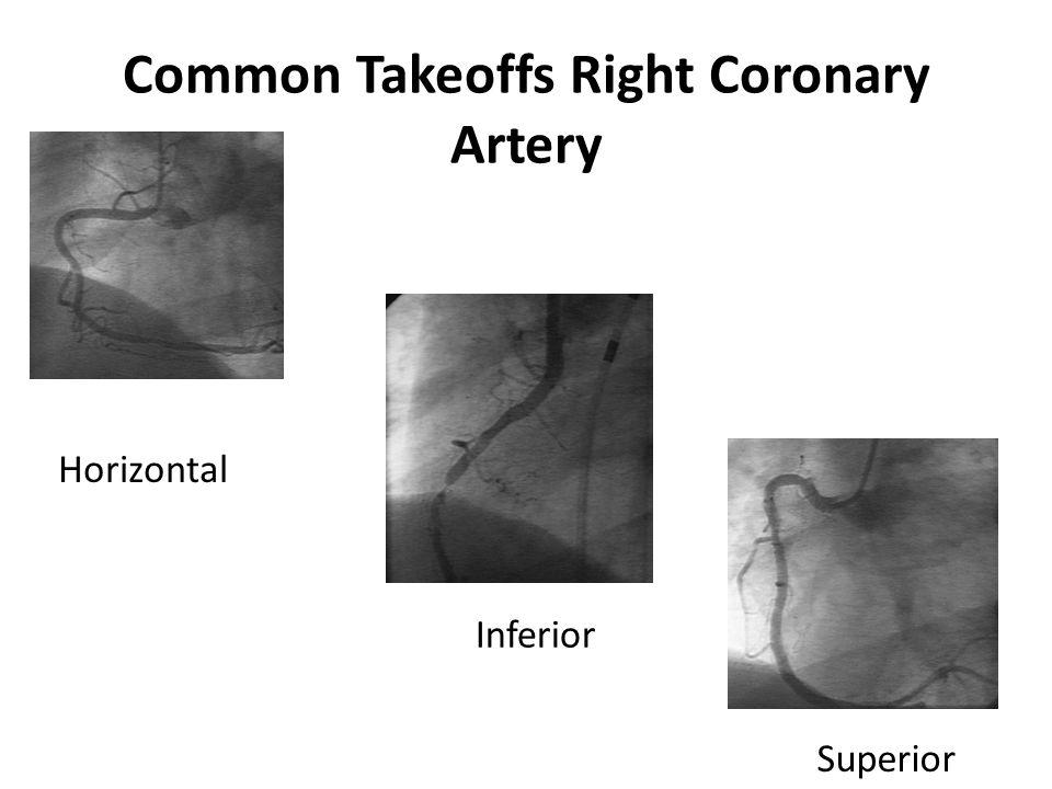 Common Takeoffs Right Coronary Artery Horizontal Inferior Superior