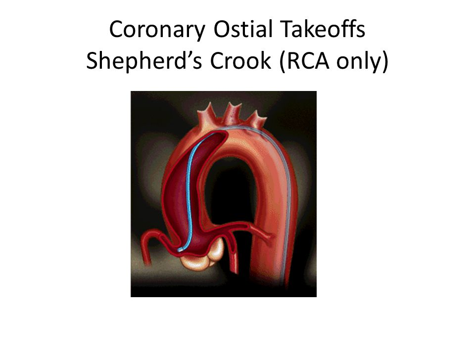 Coronary Ostial Takeoffs Shepherd's Crook (RCA only)