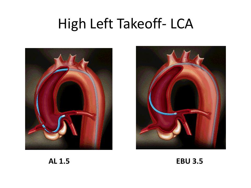 High Left Takeoff- LCA AL 1.5EBU 3.5