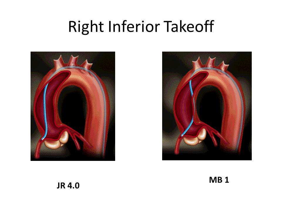 Right Inferior Takeoff JR 4.0 MB 1