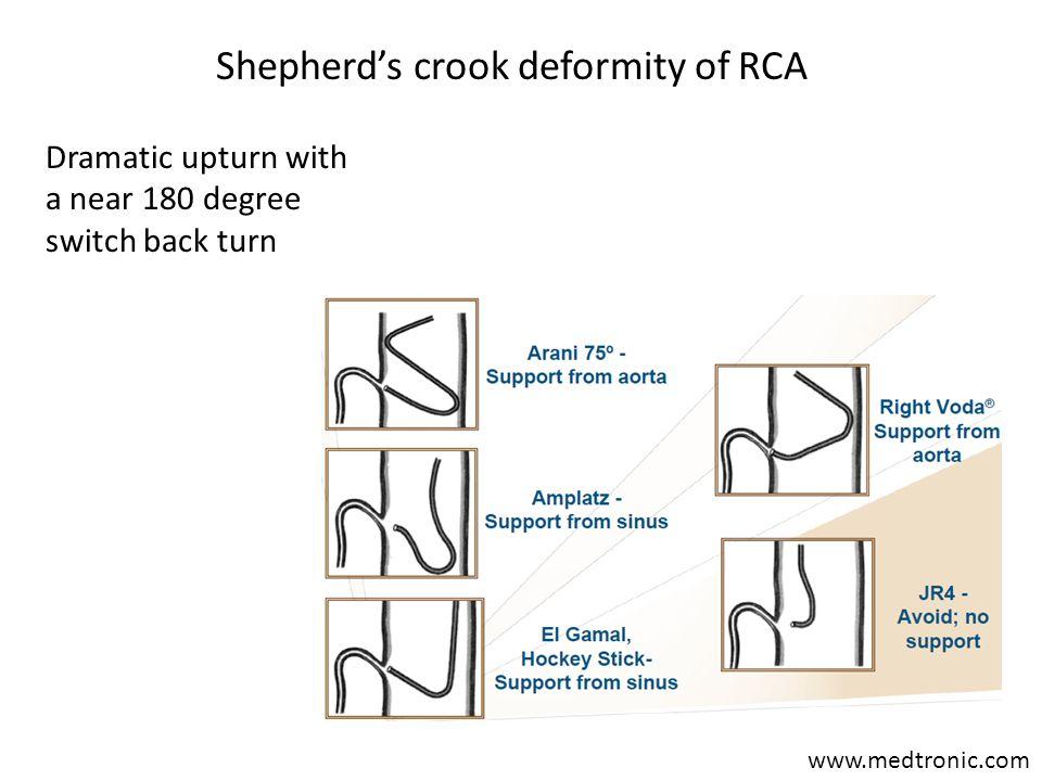 Shepherd's crook deformity of RCA www.medtronic.com Dramatic upturn with a near 180 degree switch back turn