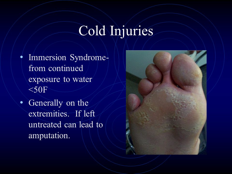 Cold Injuries Immersion Syndrome- from continued exposure to water <50F Generally on the extremities.