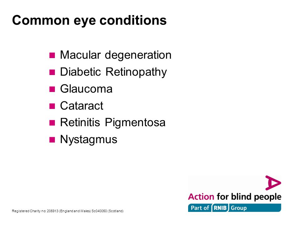 Registered Charity no: 205913 (England and Wales) Sc040050 (Scotland) Macular degeneration can lead to a loss of central vision whilst side vision remains Action Registered Charity no: 205913 (England and Wales) SC040050 (Scotland) , RNIB Registered Charity Number 226227