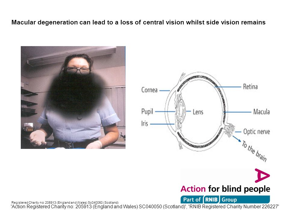Registered Charity no: 205913 (England and Wales) Sc040050 (Scotland) Diabetic Retinopathy can cause blurred and patchy vision Action Registered Charity no: 205913 (England and Wales) SC040050 (Scotland) , RNIB Registered Charity Number 226227