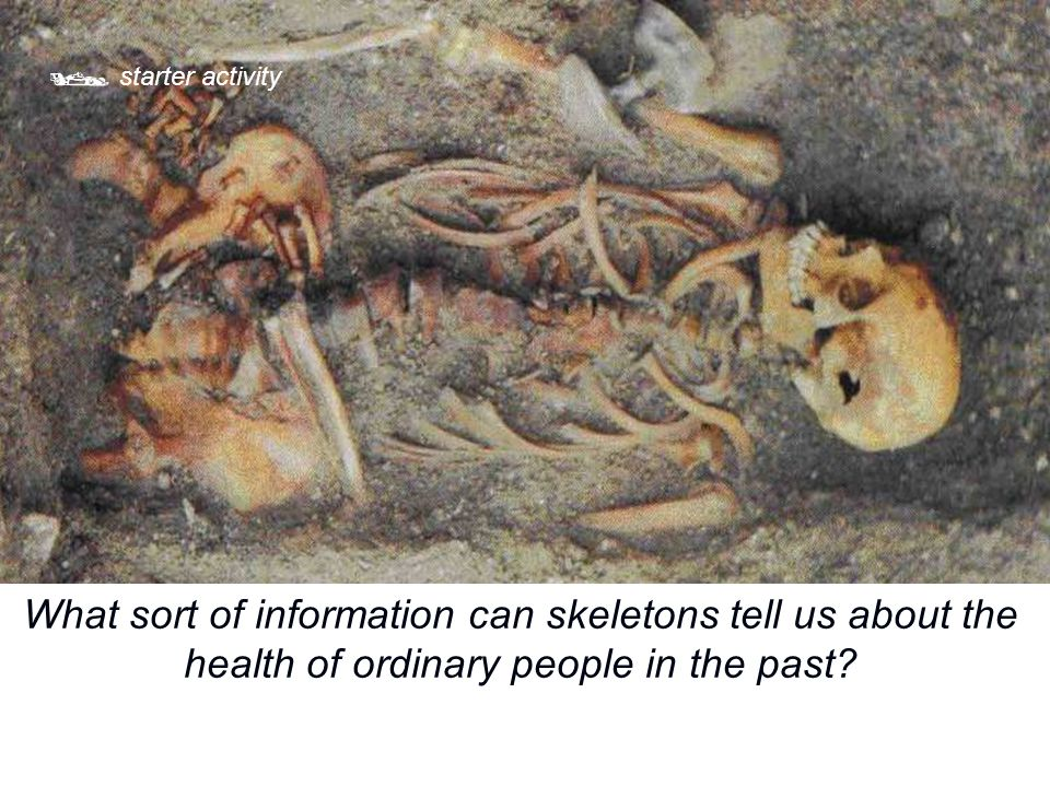  starter activity What sort of information can skeletons tell us about the health of ordinary people in the past