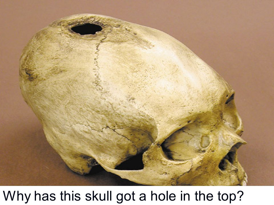 Why has this skull got a hole in the top