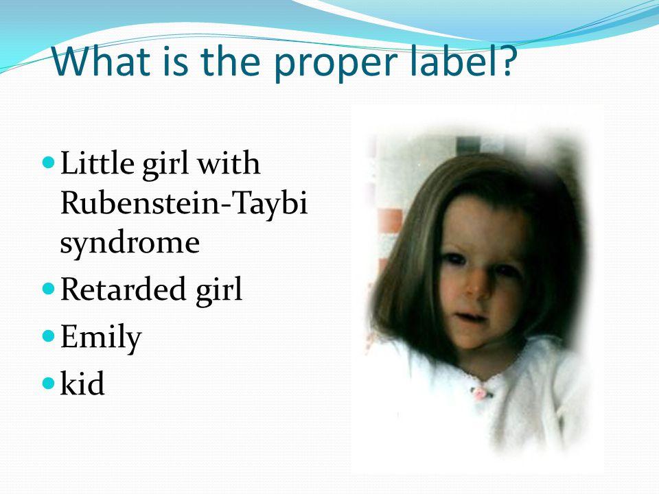 Little girl with Rubenstein-Taybi syndrome Retarded girl Emily kid