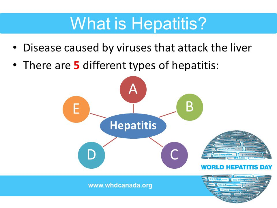Hepatitis can lead to… Liver damage (cirrhosis) Liver cancer The need for a liver transplant