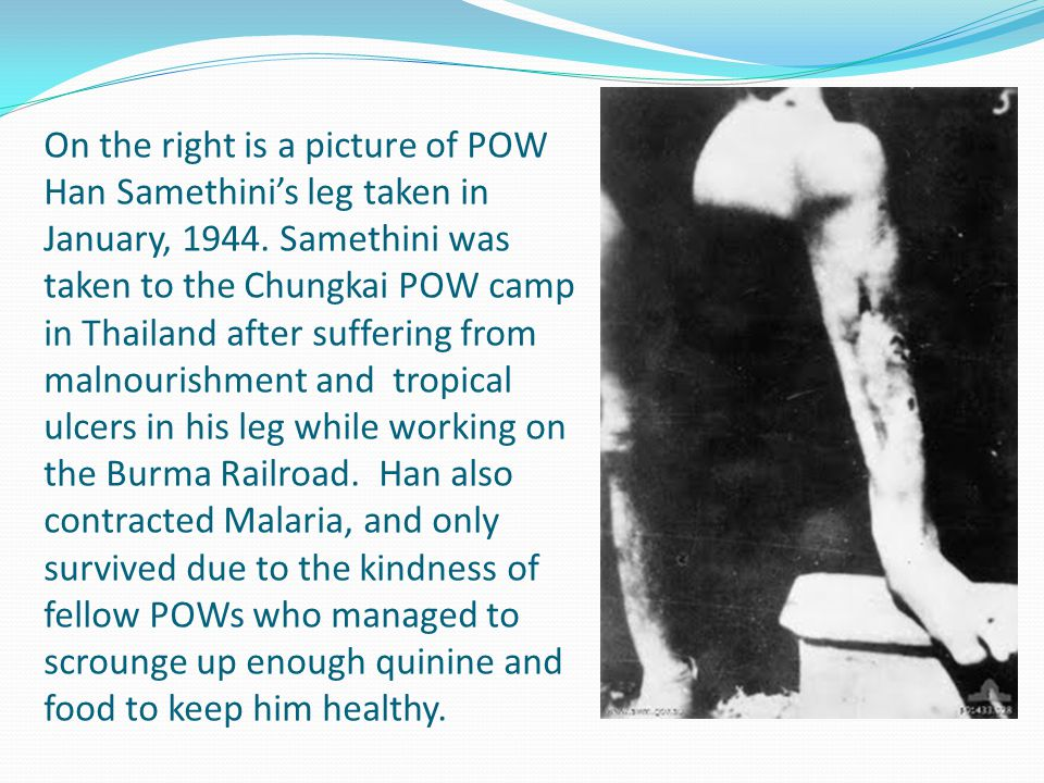 On the right is a picture of POW Han Samethini's leg taken in January, 1944. Samethini was taken to the Chungkai POW camp in Thailand after suffering