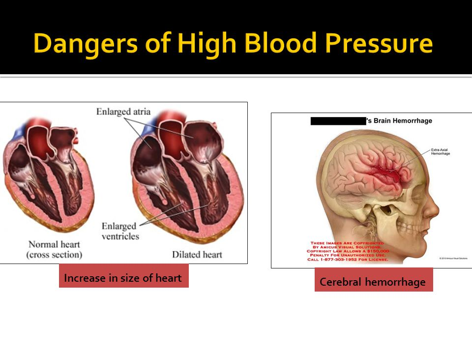 Increase in size of heart Cerebral hemorrhage