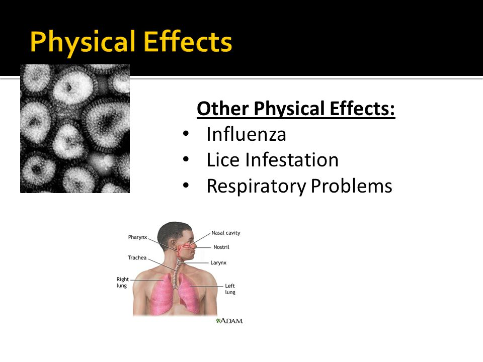 Other Physical Effects: Influenza Lice Infestation Respiratory Problems