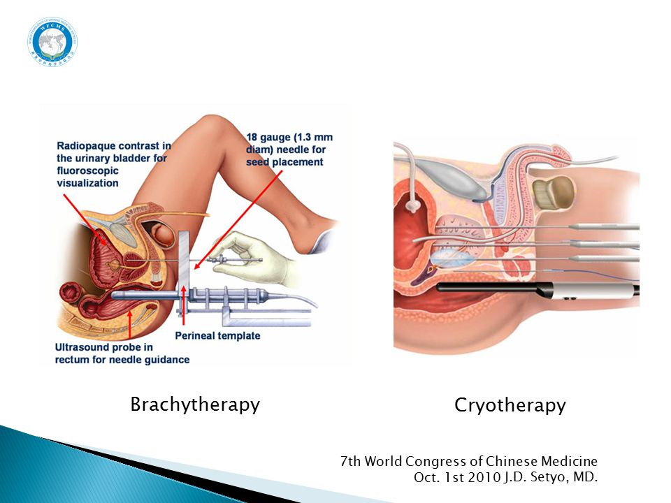 Oct. 1st 2010 7th World Congress of Chinese Medicine J.D. Setyo, MD. Brachytherapy Cryotherapy