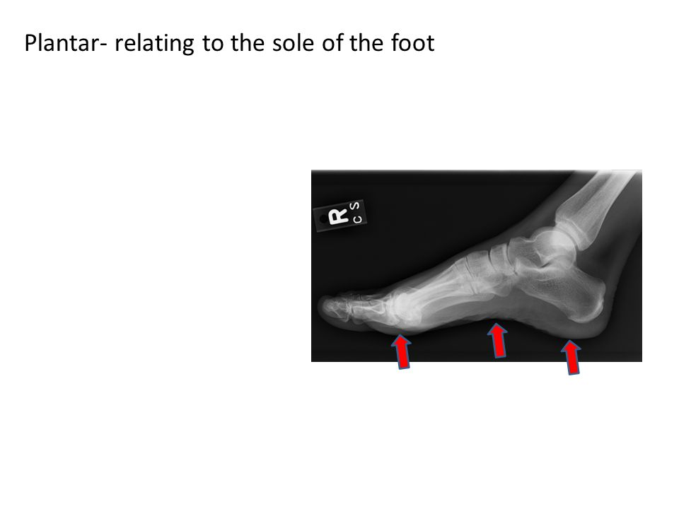 Plantar- relating to the sole of the foot