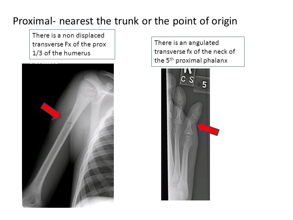 Proximal- nearest the trunk or the point of origin There is a non displaced transverse Fx of the prox 1/3 of the humerus There is an angulated transve