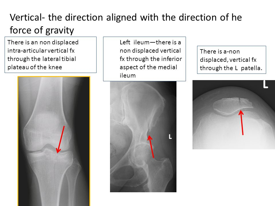 Vertical- the direction aligned with the direction of he force of gravity There is an non displaced intra-articular vertical fx through the lateral ti