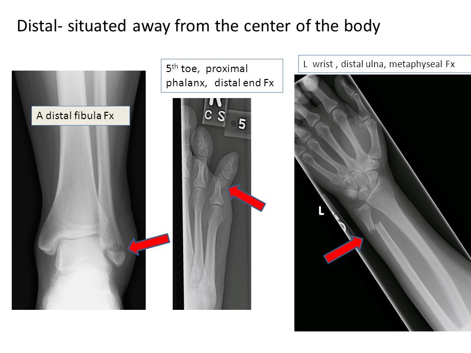 Distal- situated away from the center of the body A distal fibula Fx 5 th toe, proximal phalanx, distal end Fx L wrist, distal ulna, metaphyseal Fx