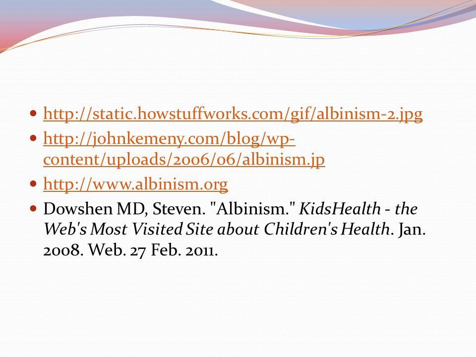 http://static.howstuffworks.com/gif/albinism-2.jpg http://johnkemeny.com/blog/wp- content/uploads/2006/06/albinism.jp http://johnkemeny.com/blog/wp- c