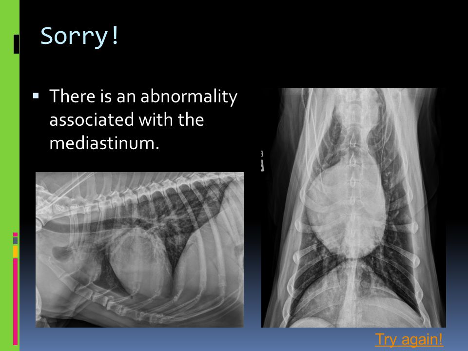Sorry!  There is an abnormality associated with the mediastinum. Try again!