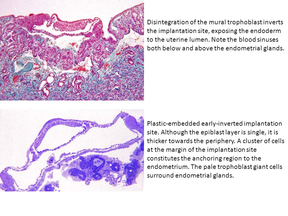 Disintegration of the mural trophoblast inverts the implantation site, exposing the endoderm to the uterine lumen. Note the blood sinuses both below a